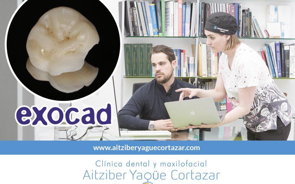 https://aitziberyaguecortazar.com/wp-content/uploads/2021/03/protesis-digitales-aitziber-yague-soria-1024x768-1-1024x640.jpg